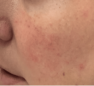 Rosacea Treatment Walnut Creek, CA | Beau Visage Aesthetics