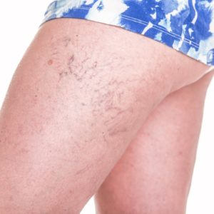 A woman's leg with spider veins